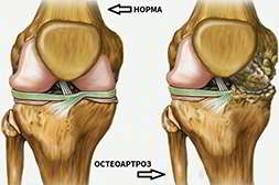 Артродекс предотвращает разрушение сустава