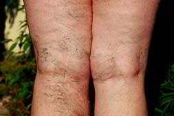 Варитонус быстро излечивает варикоз