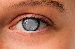 Препарат Оптивистин защищает зрачок от катаракты.