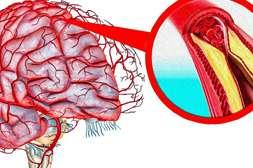 Микардин восстанавливает кровоснабжение органов.