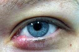 Устраняет инфекции препарат Биокулист.