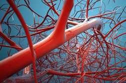 С препаратом Артериаль снимается риск резкого сужения русел.