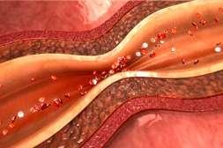 Cardiosoft обладает сосудорасширяющим действием.