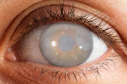 Предотвращают развитие глаукомы и катаракты капсулы Sokolin.