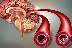 Препарат Cordis Meridian лечит хронические болезни.