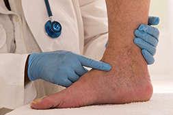 Виатон предупреждает развитие варикоза и патологий.