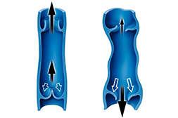Состав Виатона восстанавливает функцию клапанов.