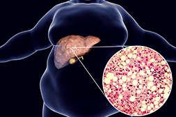 Лекарство Ливерфорт спасает печень от ожирения.